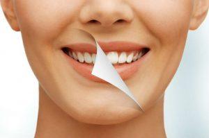 Mitos e verdades do escurecimento dental