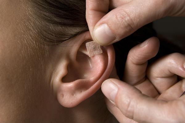 Acupuntura ajuda no tratamento odontológico